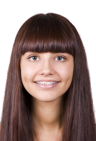 Girl with Bangs and Braces John A Gerling DDS in McAllen TX