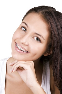 ortho smile braces
