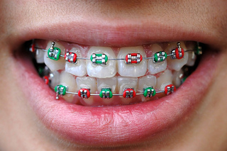ortho mouth colored bands